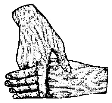 Fig. 261